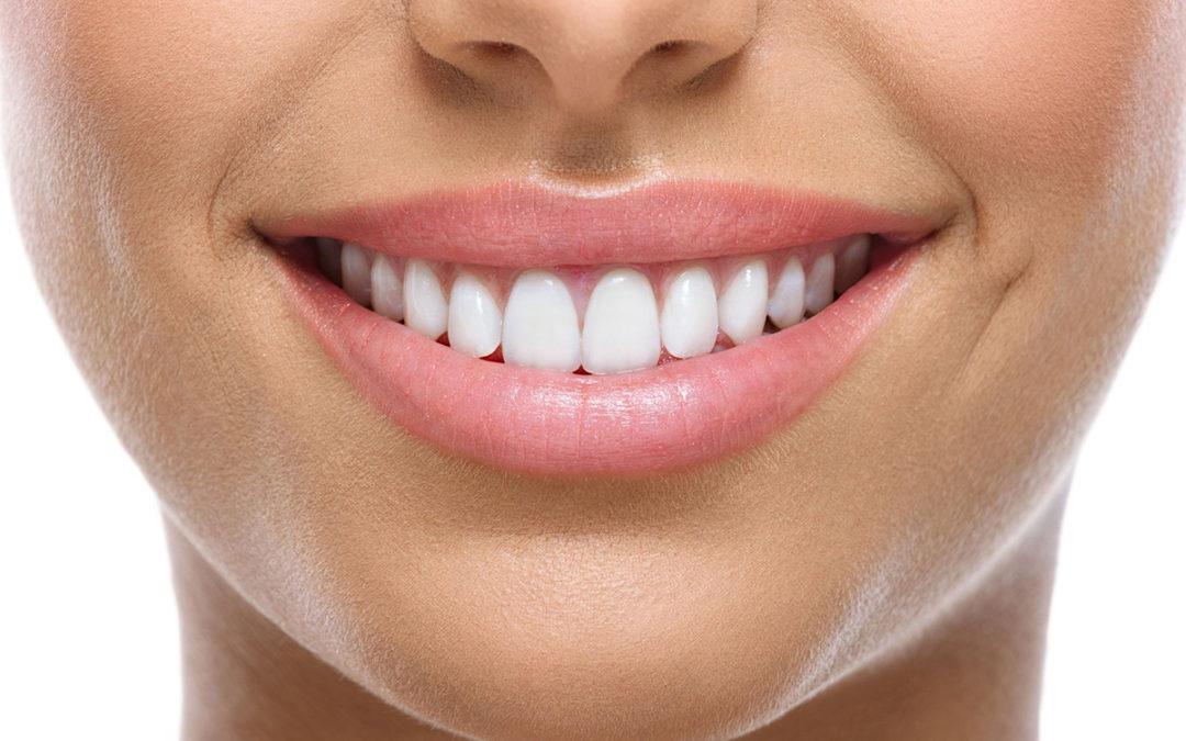La odontología estética ayuda a solucionar problemas de salud bucal