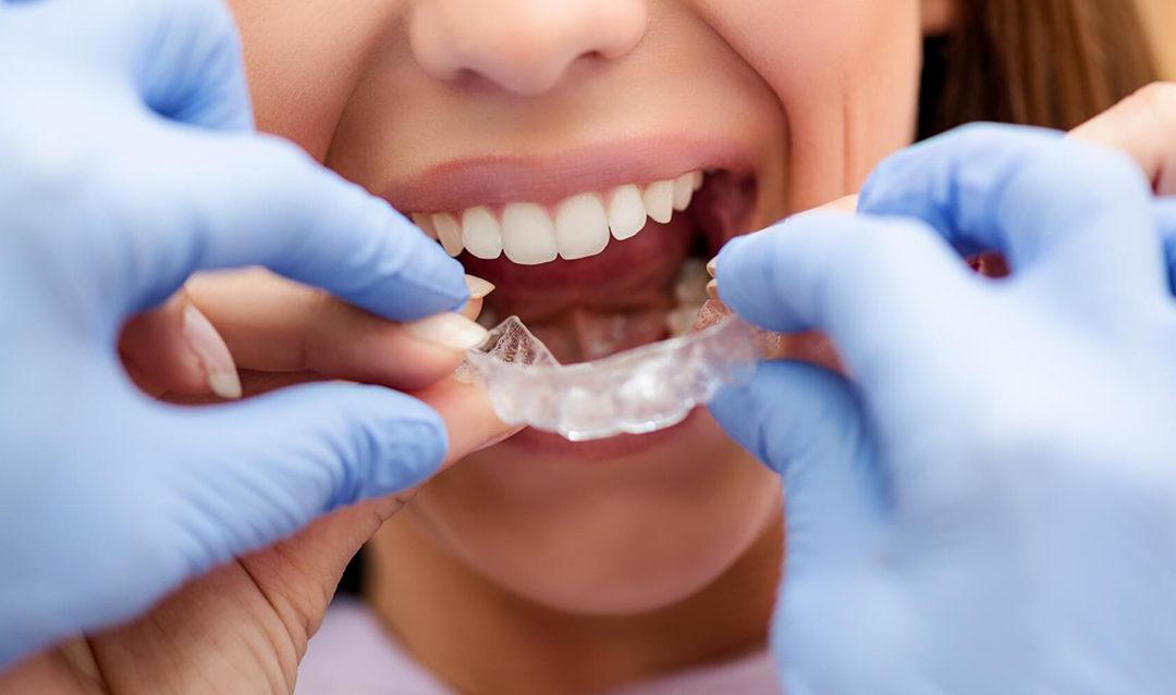En centro dental integral te ayudamos a cuidar tu sonrisa