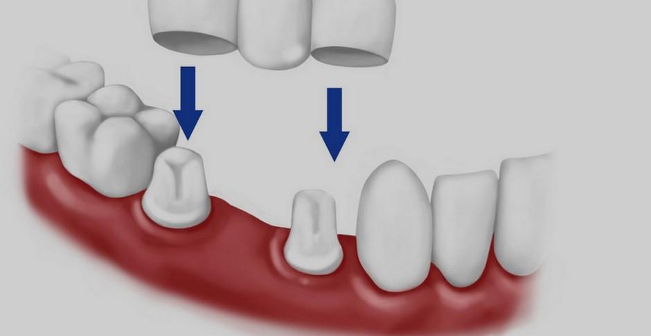 Cómo solucionar las ausencias de piezas dentales